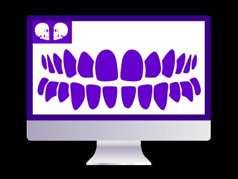 Implantes dentales con software 3D Donosti-San Sebastián